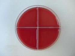 Sheep blood agar